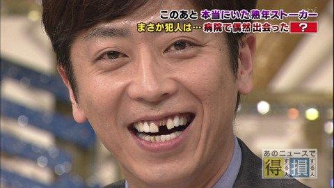 I0006035 25 - 芸能人の歯は天然ではない?差し歯、入れ歯、インプラントをした芸能人まとめ!
