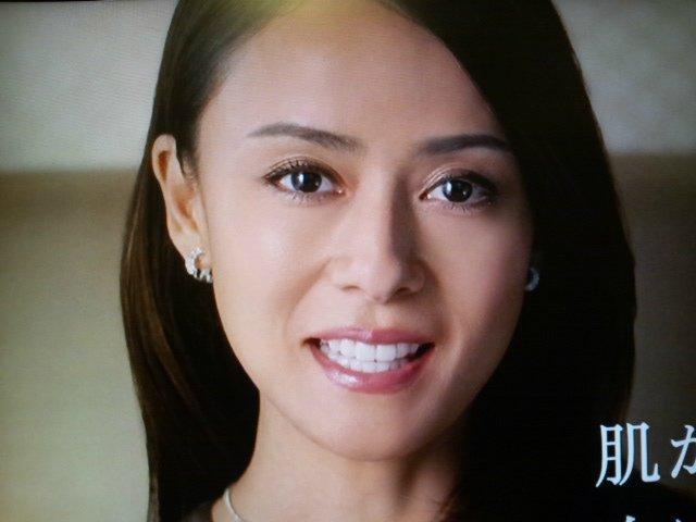 I0006035 28 - 芸能人の歯は天然ではない?差し歯、入れ歯、インプラントをした芸能人まとめ!