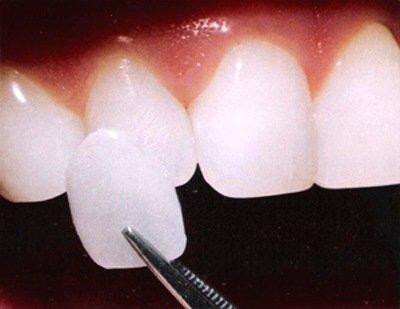 I0006035 3 - 芸能人の歯は天然ではない?差し歯、入れ歯、インプラントをした芸能人まとめ!