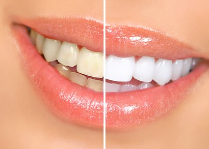 芸能人の歯 ホワイトニング