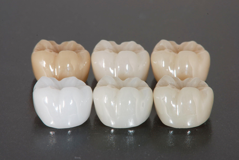 I0006035 6 - 芸能人の歯は天然ではない?差し歯、入れ歯、インプラントをした芸能人まとめ!