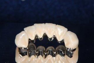 I0006035 8 - 芸能人の歯は天然ではない?差し歯、入れ歯、インプラントをした芸能人まとめ!